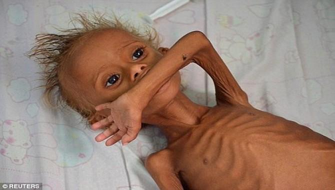 Yemen'de savaş bilançosu: 370 bin çocuğun açlık çekiyor